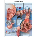 Colon Cancer Chart
