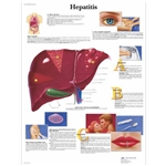3B Scientific Hepatitis Chart