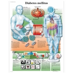 3B Scientific Diabetes Mellitus Chart