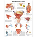 3B Scientific The Prostate Gland Chart