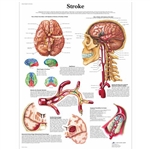 3B Scientific Stroke Chart