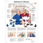 3B Scientific Alzheimer's Disease Chart