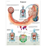 3B Scientific Cancer Chart