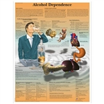 3B Scientific Alcohol Dependence Chart