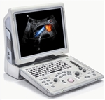 Z6 Portable Color Doppler Diagnostic Ultrasound System (MSK w/ iNeedle Software for Injections)