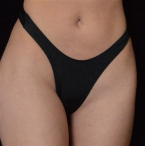 G202 - *NEW COLORS ADDED* Retro Thong (4 Colors)