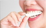 Magic Teeth Brace Snap On Smile Veneers perfect smile