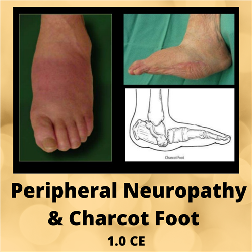 Neuropathy & Charcot Foot