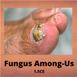 Fungus Among-Us - 1.5CE - $37.50