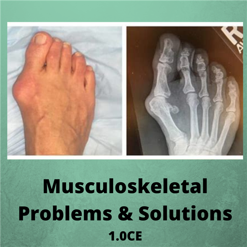 Musculoskeletal Problems and Solutions - 1.0CE - $25.00