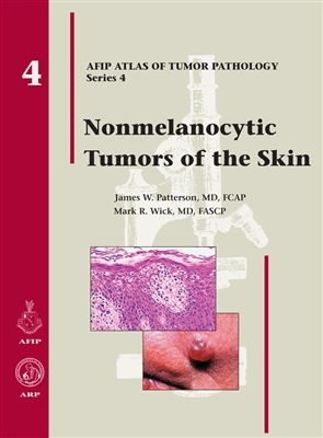 Nonmelanocytic Tumors of the Skin