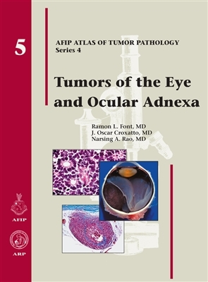 Tumors of the Eye & Ocular Adnexa