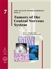 Tumors of the Central Nervous System