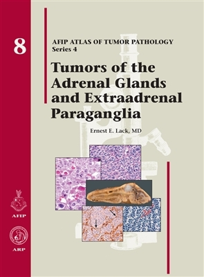 Tumors of the Adrenal Gland and Extraadrenal Paraganglia