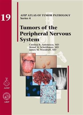 Tumors of the Peripheral Nervous System