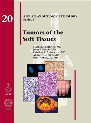 Tumors of the Soft Tissues