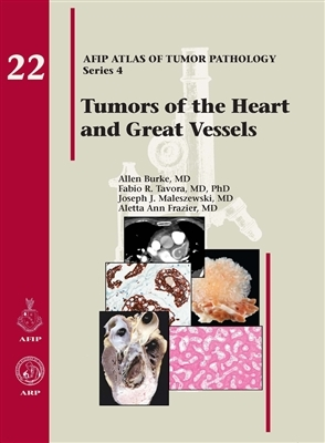 Tumors of the Heart & Great Vessels