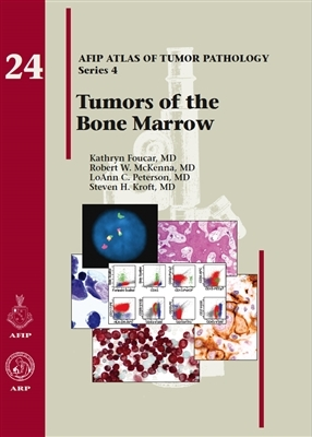 Tumors of the Bone Marrow