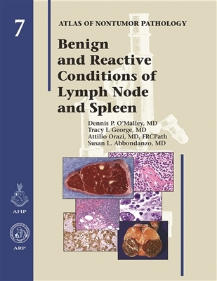 Benign & Reactive Conditions of the Lymph Node & Spleen