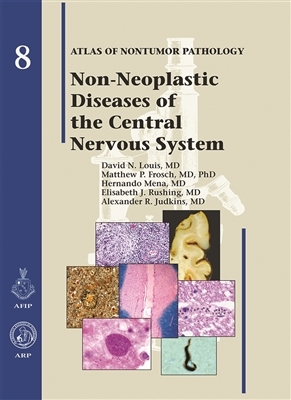 Non-Neoplastic Diseases of the Central Nervous System