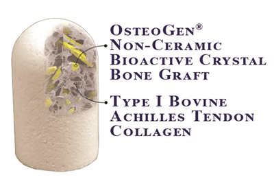 OsteoGen® Plugs - The One Step Bone Graft Solution For Socket Preservation