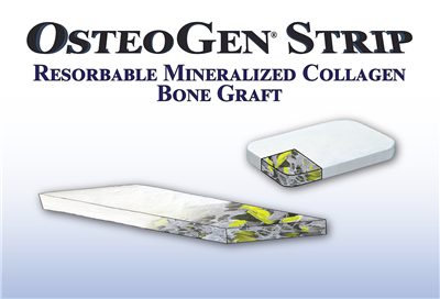 OsteoGen Strip - Resorbable Mineralized Collagen Bone Graft