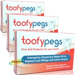 3x Toofypegs Tooth Repair Kit for Lost Fillings & Loose Crowns