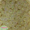 14mm Clear Rhinestone 20 pack