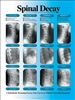 Spinal Decay X-ray Chart