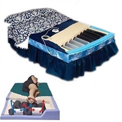 PressureGuard APM2 Alternating Air Pressure Mattress