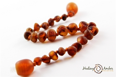"Raw Olive Healing Amber 13"" Necklace"