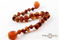 "Raw Caramel Circle Healing Amber 15"" Necklace"