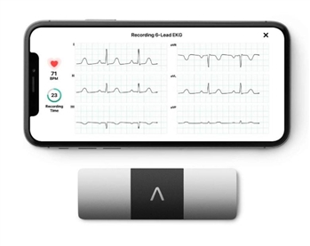 KardiaMobile 6L EKG l Wireless 6-Lead EKG