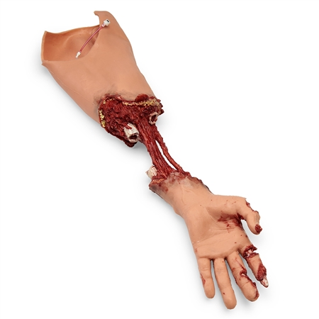 Amputated Trauma Bleeding Moulage Arm