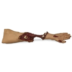 Xtreme Trauma Moulage Arm - 642