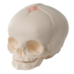 Fetal Skull Model in the 30th Week of Pregnancy