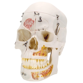 Skull Model | Demonstration Skull Model | Deluxe Skull Model | 3B Scientific Deluxe Demonstration Skull Model  A27 | Demonstration Skull Model On Sale