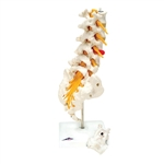 Lumbar Spinal Column Model with dorso-lateral prolapsed intervertebral disc A76-5