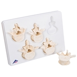 Set of 5 lumbar Vertebrae Model A792