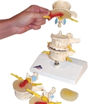 Stages of disc prolapse and vertebral degeneration model - A795