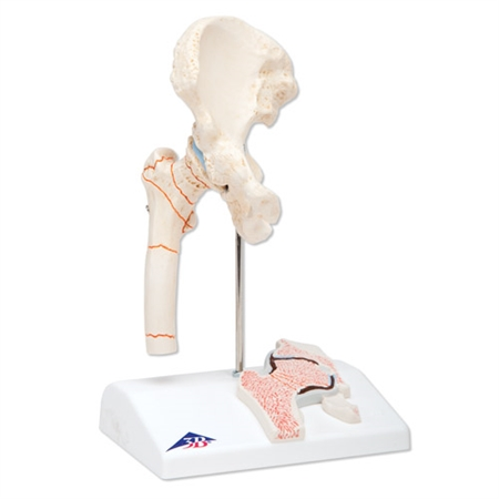 Femoral Fracture Model | Femoral Hip Osteoarthritis Model | Femur Fracture Model | Femoral Fracture and Hip Osteoarthritis Model | Femoral Fracture and Hip Joint Osteoarthritis Model - Shows 8 Diiferent Fractures A88 | Buy Femoral Fracture and Hip Model