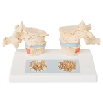 Osteoporosis Model | osteoporotic thoracic vertebrae mode