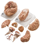 SOMSO Brain Model | SOMSO Brain with Arteries | SOMSO Brain Model with Arteries | SOMSO Brain Model with Arteries | SOMSO Brain Model with Arteries BS-23