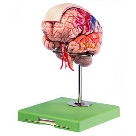 somso brain model with dura mater and falx cerebri, 10 parts