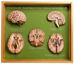 SOMSO 5 Section Models of the Brain