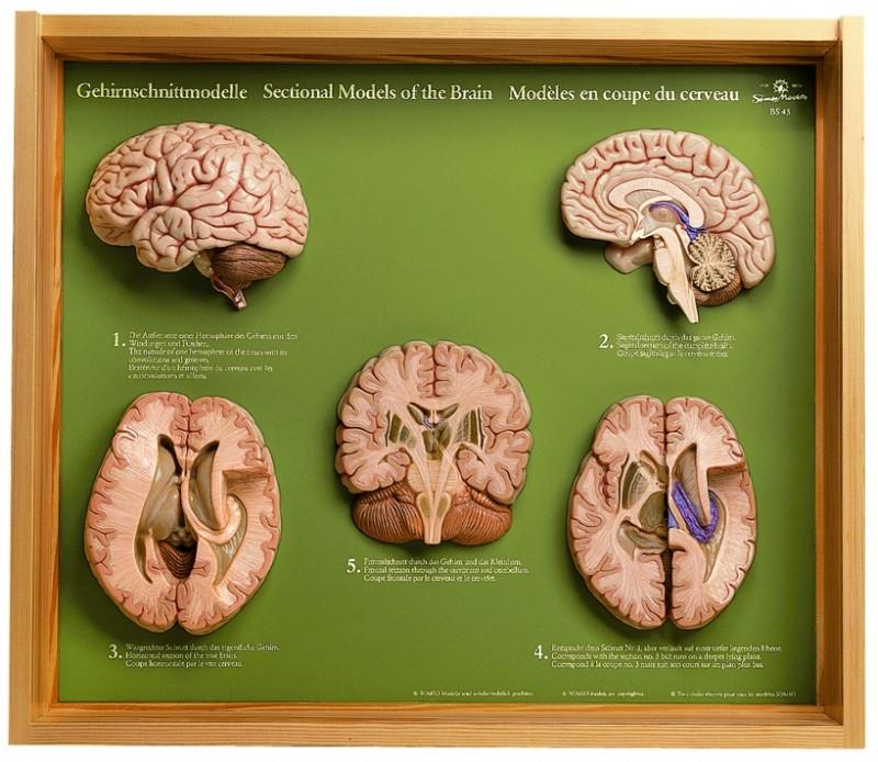 somso 5 section models of the brainBrain Model Somso #11