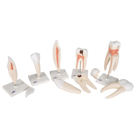 Tooth Model Series | Classic Tooth Model Series | Classic Tooth Model Series, 5 models | Classic Tooth Model Series, 5 models D10 | Buy 3B Scientific D10 Classic Tooth Model Series On Sale | 3B Scientific D10 Tooth Model Series