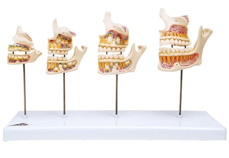Dentition Development Model | Model of Dentition Development | 3B Scientific Dentition Development Model D20 | Buy 3B Scientific D20 Dentition Development Model On Sale