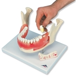 Dental Disease Model | Dental Model with Disease | Dental plaque model | Dental calculus model | Dental tartar model | Dental Periodontitis Model | Dental Fissure Model | Dental Inflammation Model | Dental Disease Model, magnified 2 times, 21 parts D26