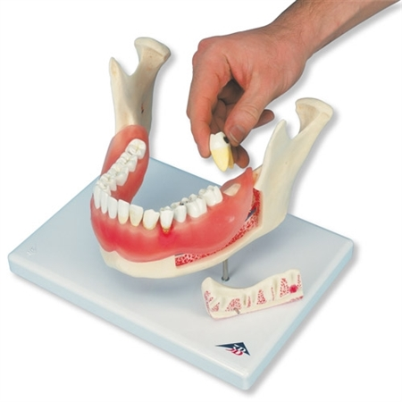 Dental Disease Model, magnified 2 times, 21 parts